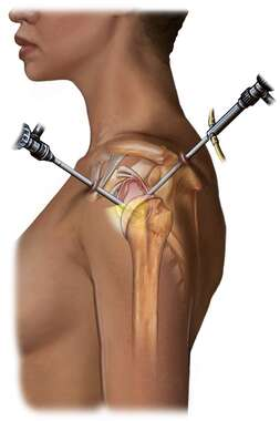 Arthroscopic Instrument Orientation