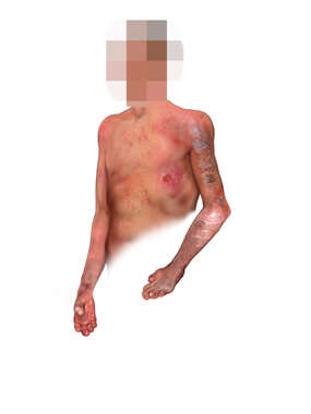 Anterolateral View of Male Figure with Tertiary Leprosy