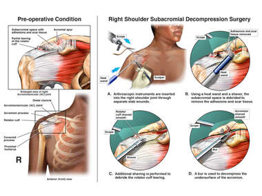 Continued Right Shoulder Impingement with Additional Surgical Treatment