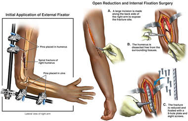 External and Internal Fixation of Right Humeral Fracture