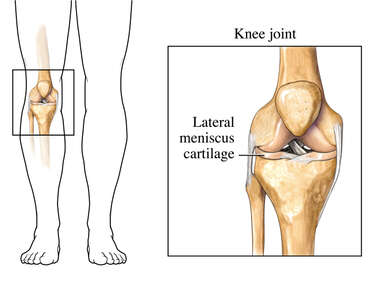 The Lateral Meniscus Cartilage - Front View