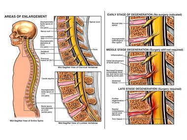Post-Traumatic Inflammation of Spinal Nerves in the Neck and Low Back