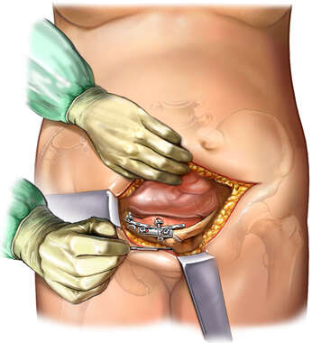 Pelvic Exposure: Pubic Bone Fixation