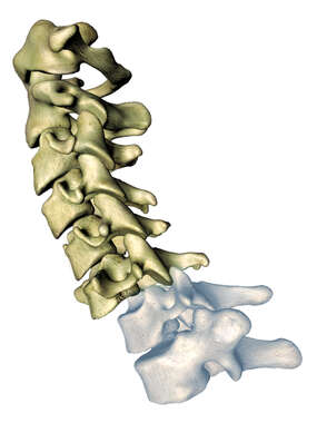 Cervical Displacement C6 over C7