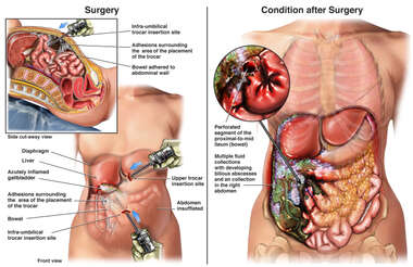 Laparoscopic Surgery with Perforation of Small Bowel