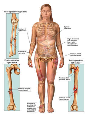 Female Figure with Fractures to the Right Forearm, and Bilateral Upper Legs-Femurs