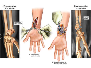 Right Wrist Fracture with Surgical Fixation