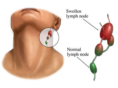 Swollen Lymph Nodes in the Neck