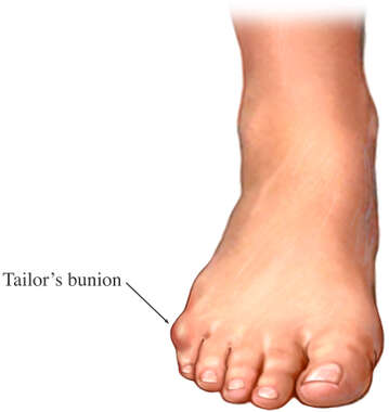 Bunionette or Tailor's Bunion