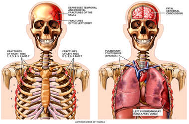 Side by Side Figures with Injuries of the Head, Brain and Thorax