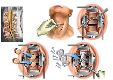 Cervical Disc Injuries with Double Level Anterior Discectomy and Fusion