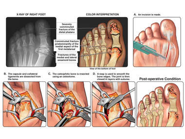 Arthritis of the Great Toe with Surgical Procedure