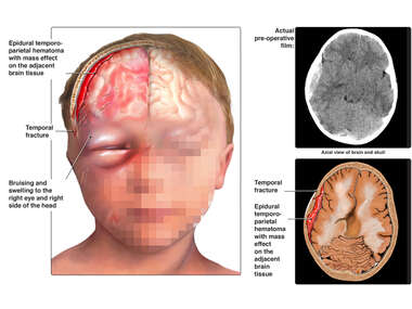 Skull Fracture and Traumatic Brain Injury