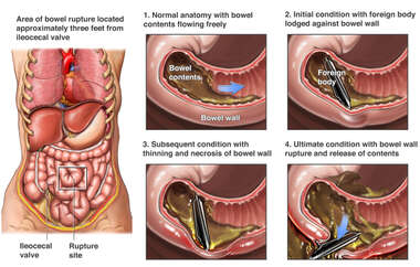 Mechanism of Bowel Perforation