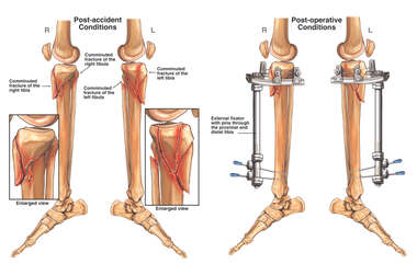 Bilateral Fractures of the Tibia and Fibula with Subsequent Surgical Repairs