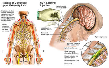Pain Management Techniques - Cervical Epidural Steroid Injection