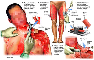 Excision and Skin Grafting