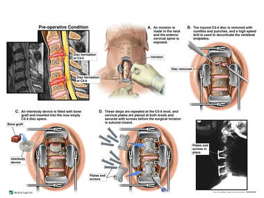 Double-Level Anterior Cervical Decompression and Fusion Surgery