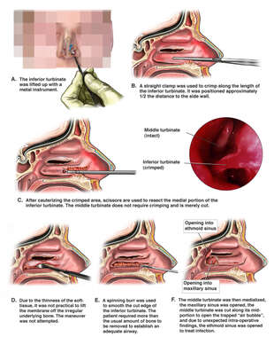 Intra-Nasal Repair Procedure