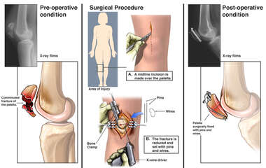 Fractured Patella with Surgical Repair