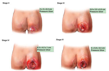 Progression of Right Buttock Pressure Ulcer