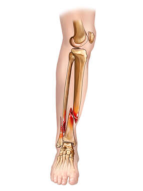 Tibia and Fibular Fractures with Rotation