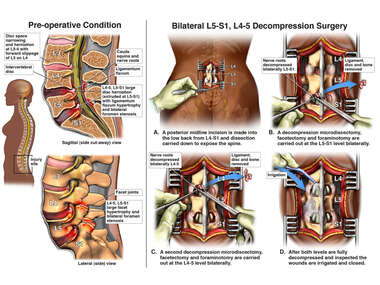 Lumbar Spine Injuries with Surgical Discectomy