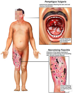 Male Figure with Disease and Infection to the Mouth and Right Thigh