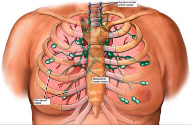 Regional Lymph Nodes of the Thorax