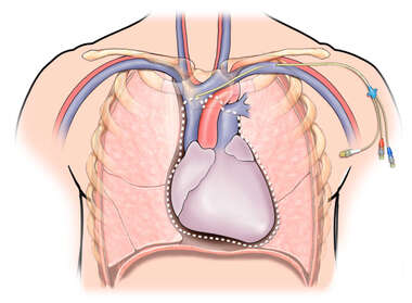 Subclavian Line Placement