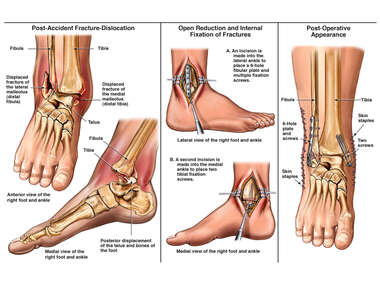 Bimalleolar RIght Ankle Fracture Dislocation with Surgical Fixation