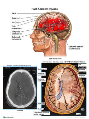 Male with Post-Accident Brain Injuries
