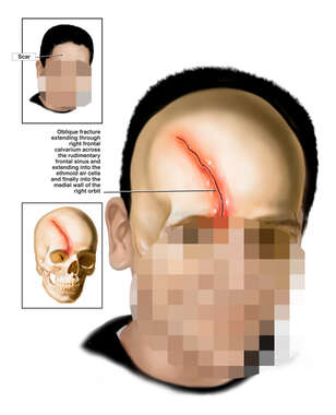 Traumatic Skull Fracture