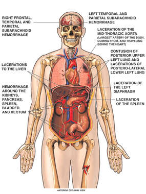 Anterior Male Torso with Injuries to the Brain, Thorax, Abdominal Organs and Leg