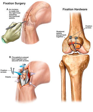 Comminuted Patellar Fractures with Surgical Fixation