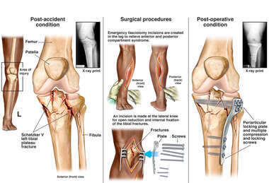 Left Tibial Plateau Fracture with Surgical Repairs