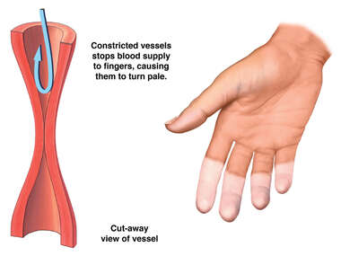 Closure of Blood Vessels