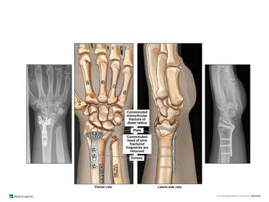 Post-operative Condition of Left Wrist