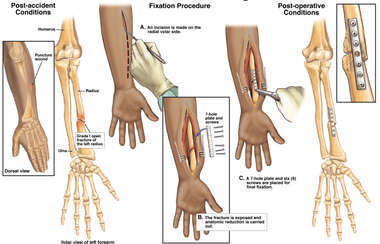 Left Forearm Fracture with Surgical Fixation