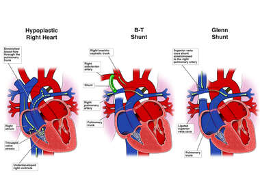 Hypoplastic Right Heart with B-T and Glenn Shunt