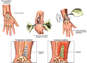Right Wrist Injuries with Surgical Fixation and Subsequent Infection