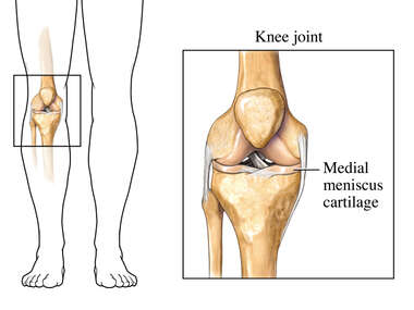 The Medial Meniscus Cartilage - Front View