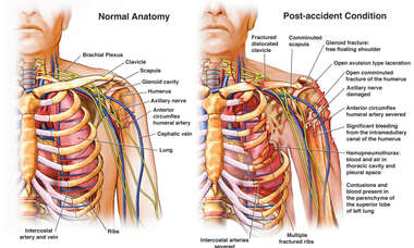 Chest and Shoulder Injuries