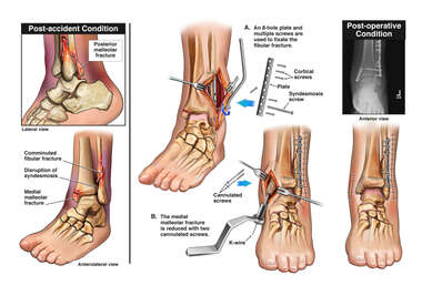 Trimalleolar Left Ankle Fractures with Surgical Fixation