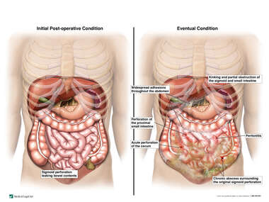 Progression of Abdominal Condition Following Sigmoid Perforation