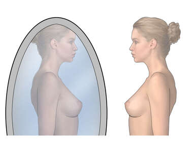 Breast Self-exam: In Front of Mirror