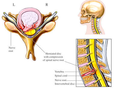 Cervical Disc Herniation with Spinal Cord Impingement