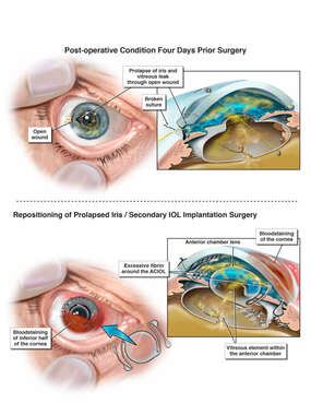 Worsening of Eye Condition After Cataract Surgery