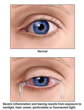 Severe Sensitivity of the Eyes Following Chemical Exposure