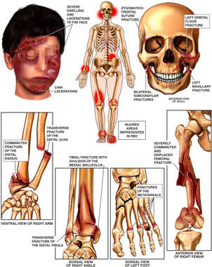 Injuries to the Face, Skull, Forearm, Thigh, Ankle and Foot